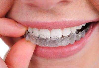 mouth gaurds