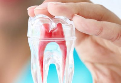 root-canal-treatment-perth